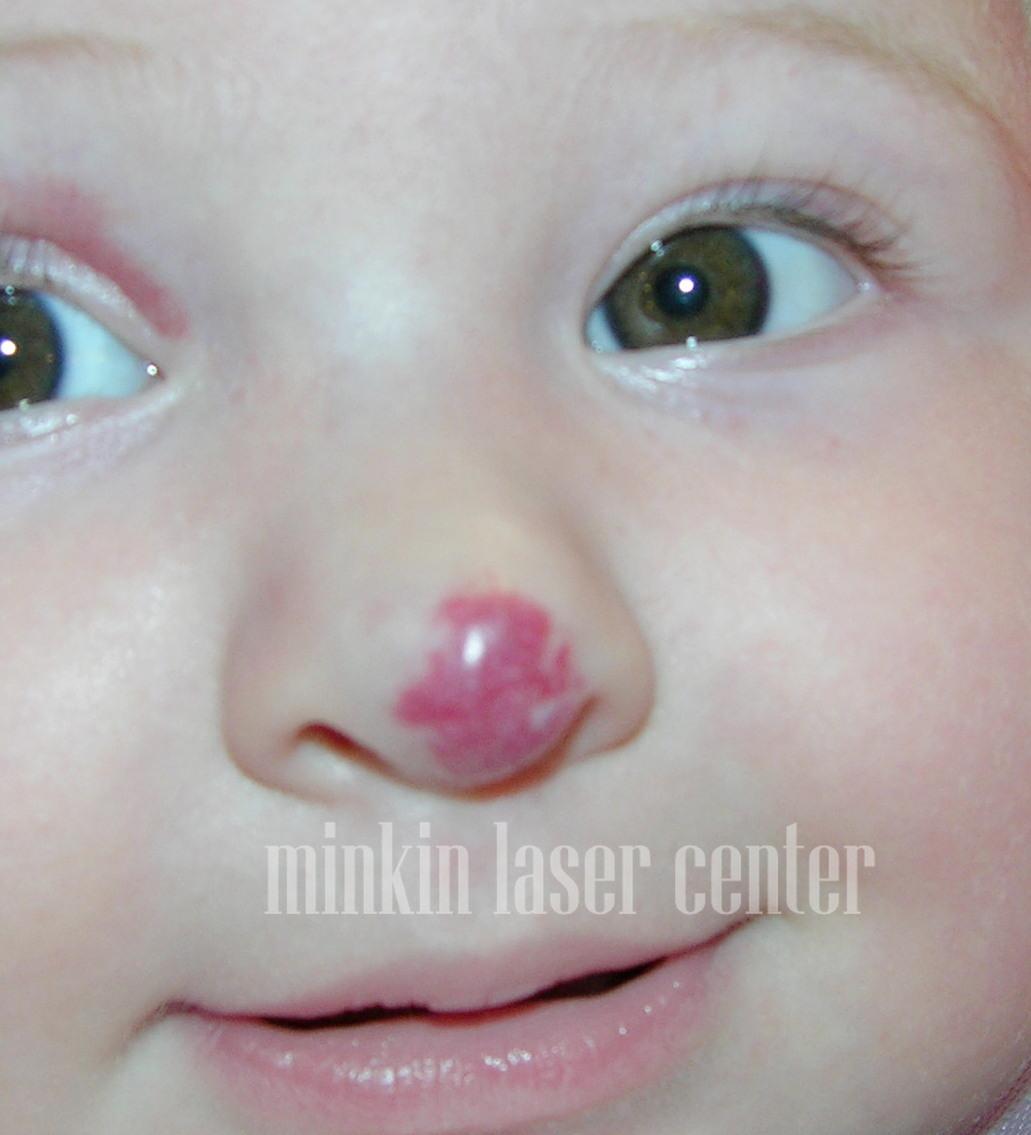 Младенческая гемангиома носа